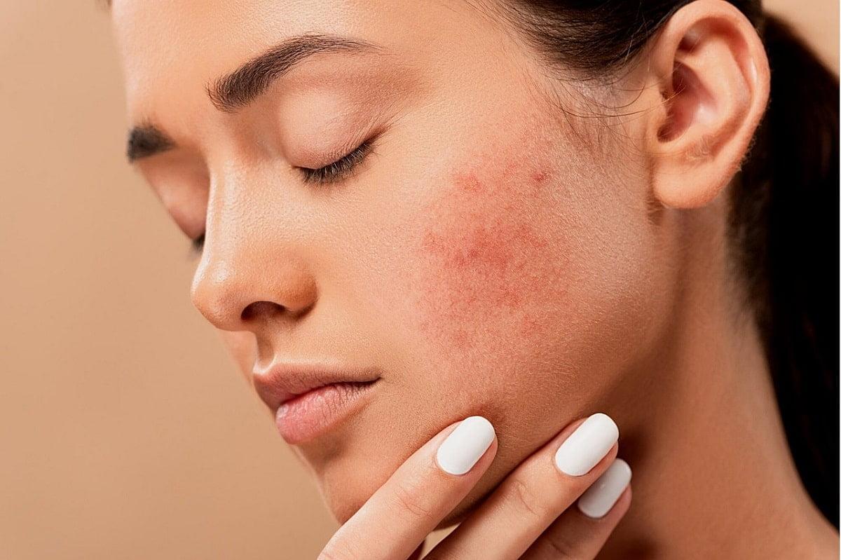 cum-scap-de-acnee-SKiN-MedSpa-min